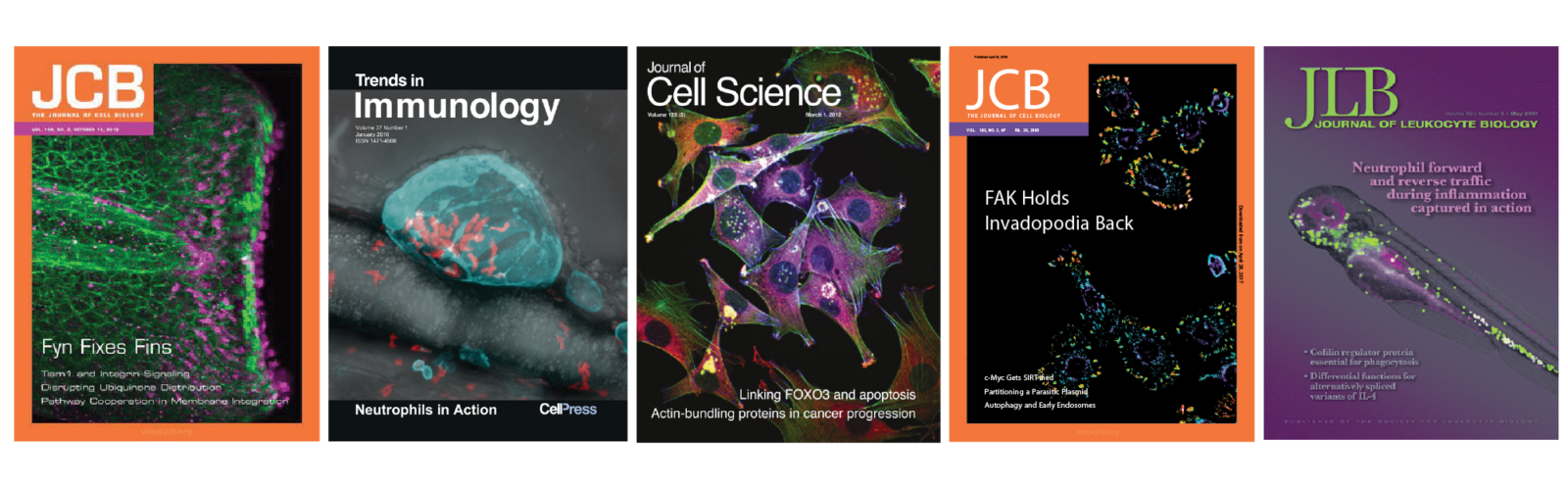 Journal Covers awarded to the Huttenlocher lab